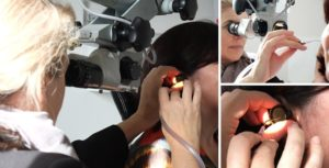 Boutique Ear Care Auckland - Ear wax removal by microsuction
